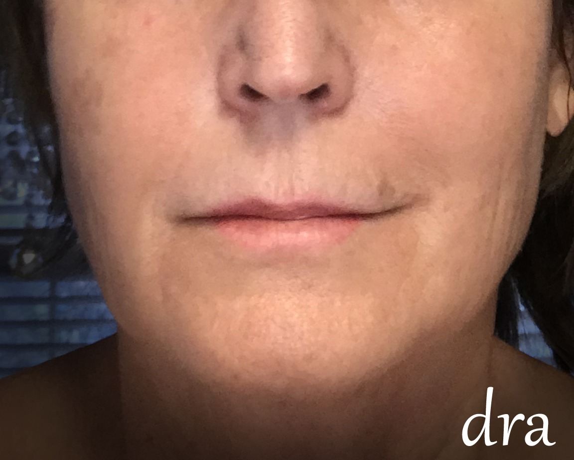 Before & After | Medical Spa in Montgomery, AL